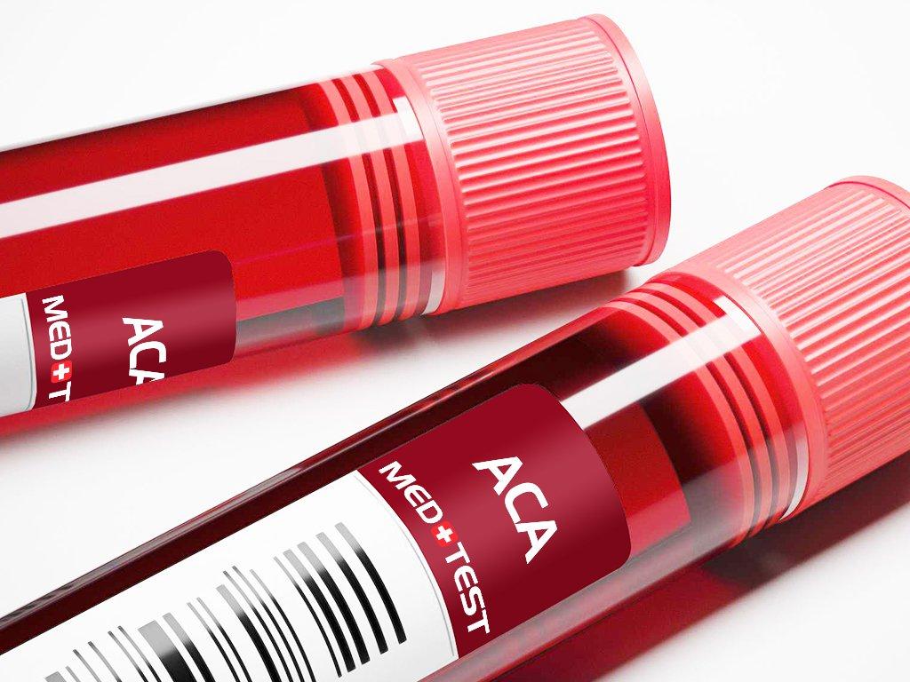 Antikardiolipidiniai antikūniai ACA