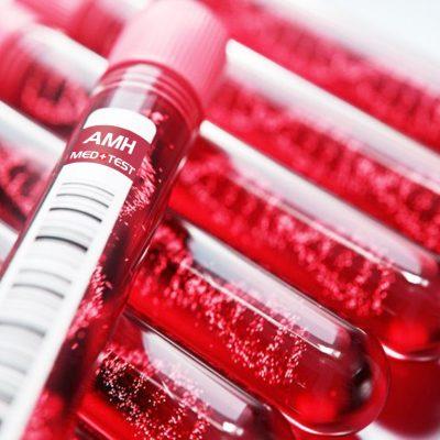 Antimulerinis hormonas AMH