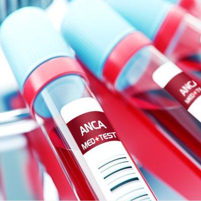 Antineutrofilinės citoplazmos antikūnų ANCA atrankos tyrimas