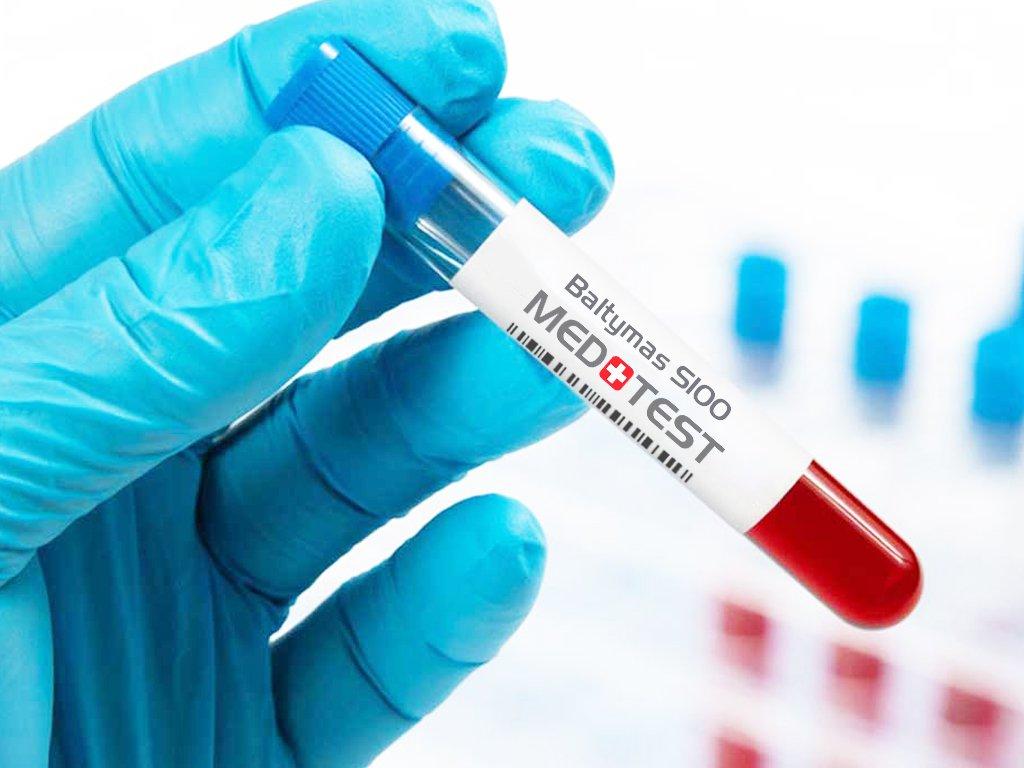 Baltymas S100 melanomos metastazių žymuo